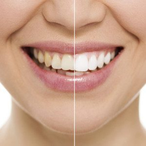 whitening dentist in lakewood colorado