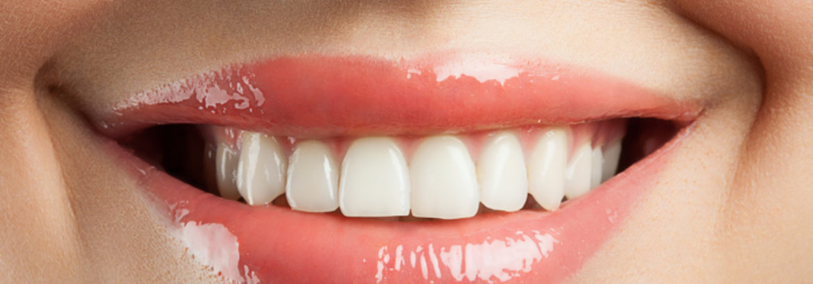 A Great Looking Smile Requires Healthy Gums