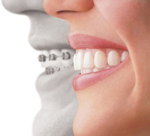 Invisalign Teeth Straighteners Special Offer Lakewood, CO Dentist